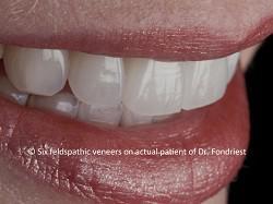 Feldspathic veneers by Dr. Fondriest